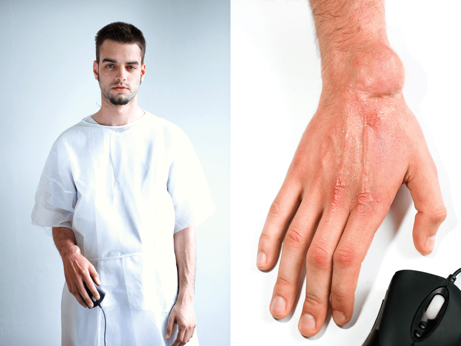 man with swelling on wrist from gaming on PC too much