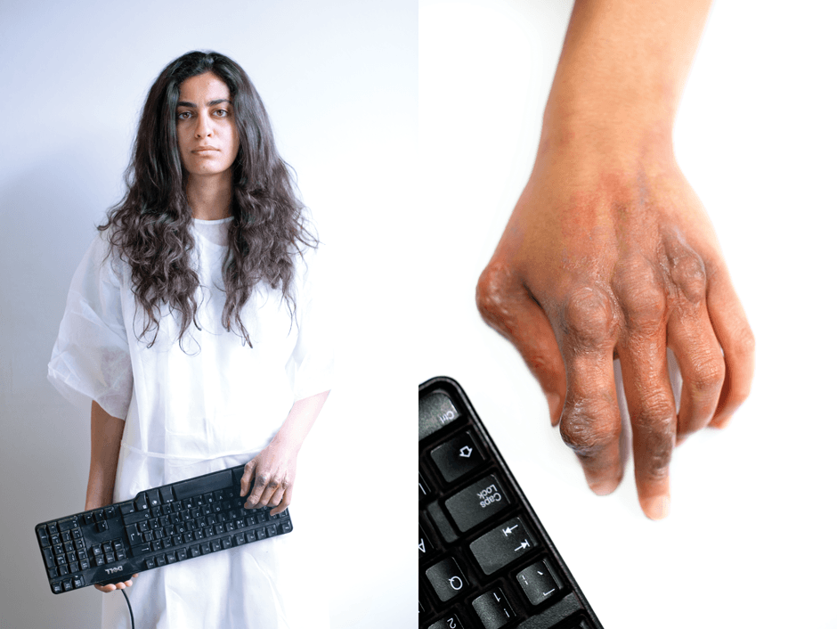 Girl holds keyboard in hospital gown and shows an injured hand caused by WASD syndrome
