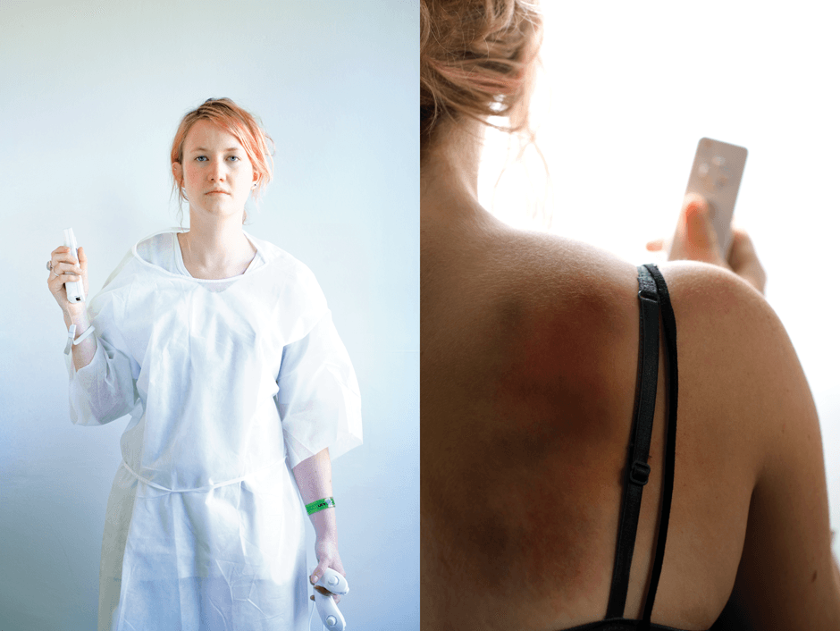 woman holds wiimote and shows bruise on shoulder from wii shoulder dislocation