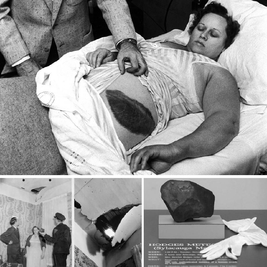 Ann Hodges and the meteorite injury she sustained.