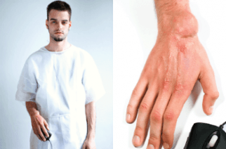 The Worst Gaming Injuries Known To Man