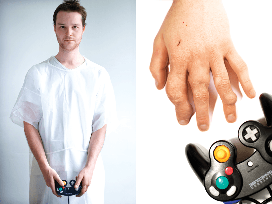 guy with arthritic hands from playing Nintendo