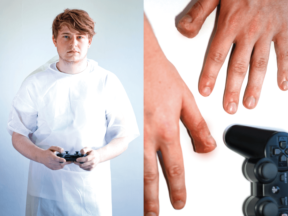 man with playstation controller and swollen hand