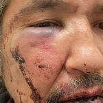 Dashcam Footage Shows Police Chokehold on Athabasca Chipewyan Chief in Alberta Casino Parking Lot
